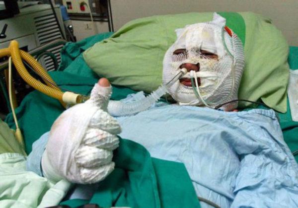 uomo in ospedale completamente fasciato